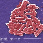 Nine Marines Have E. coli HUS Infections