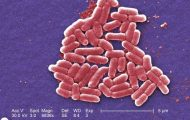 E. coli, Hemolytic Uremic Syndrome and Platelet Transfusion