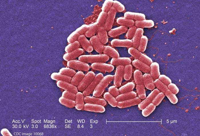 E. coli O111 Outbreak Daycare Oregon