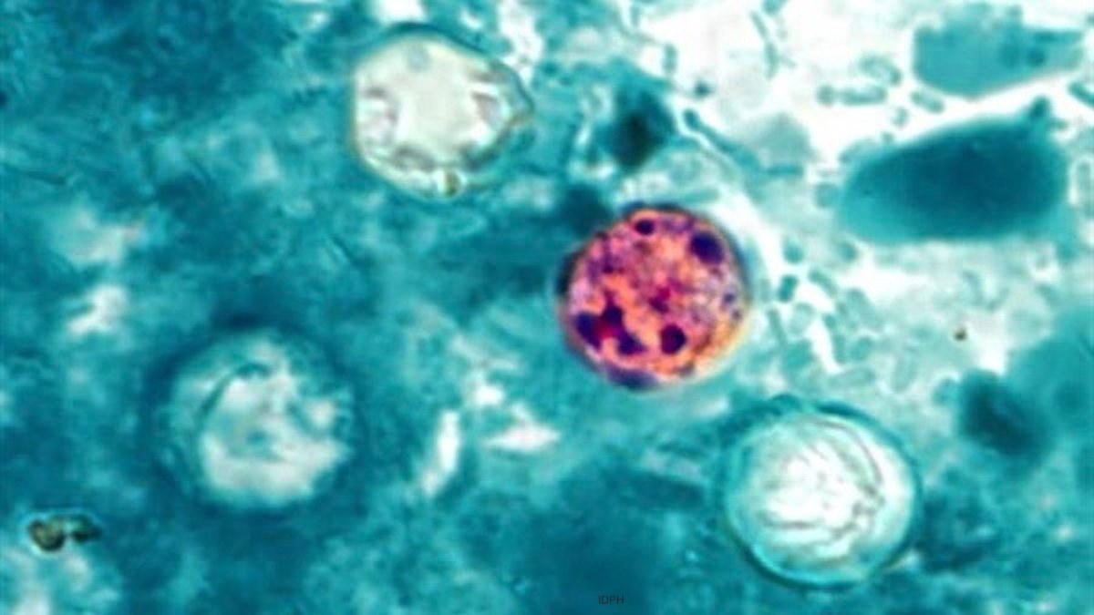 Cyclospora outbreaks
